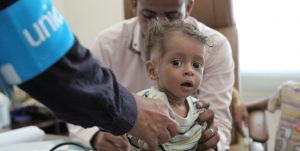 A young child is assessed for malnutrition at a UNICEF supported clinic in Yemen.