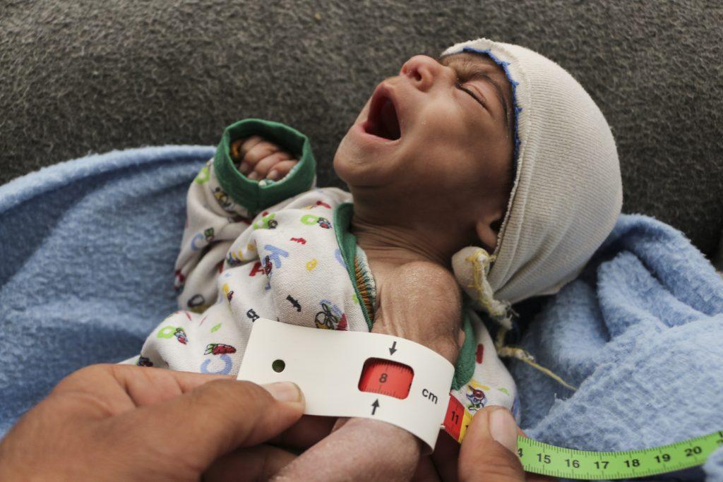 malnourished syrian baby