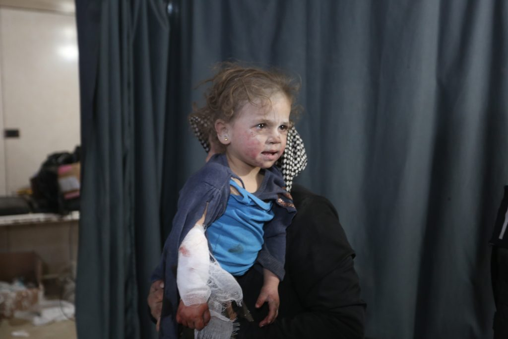 injured girl syria