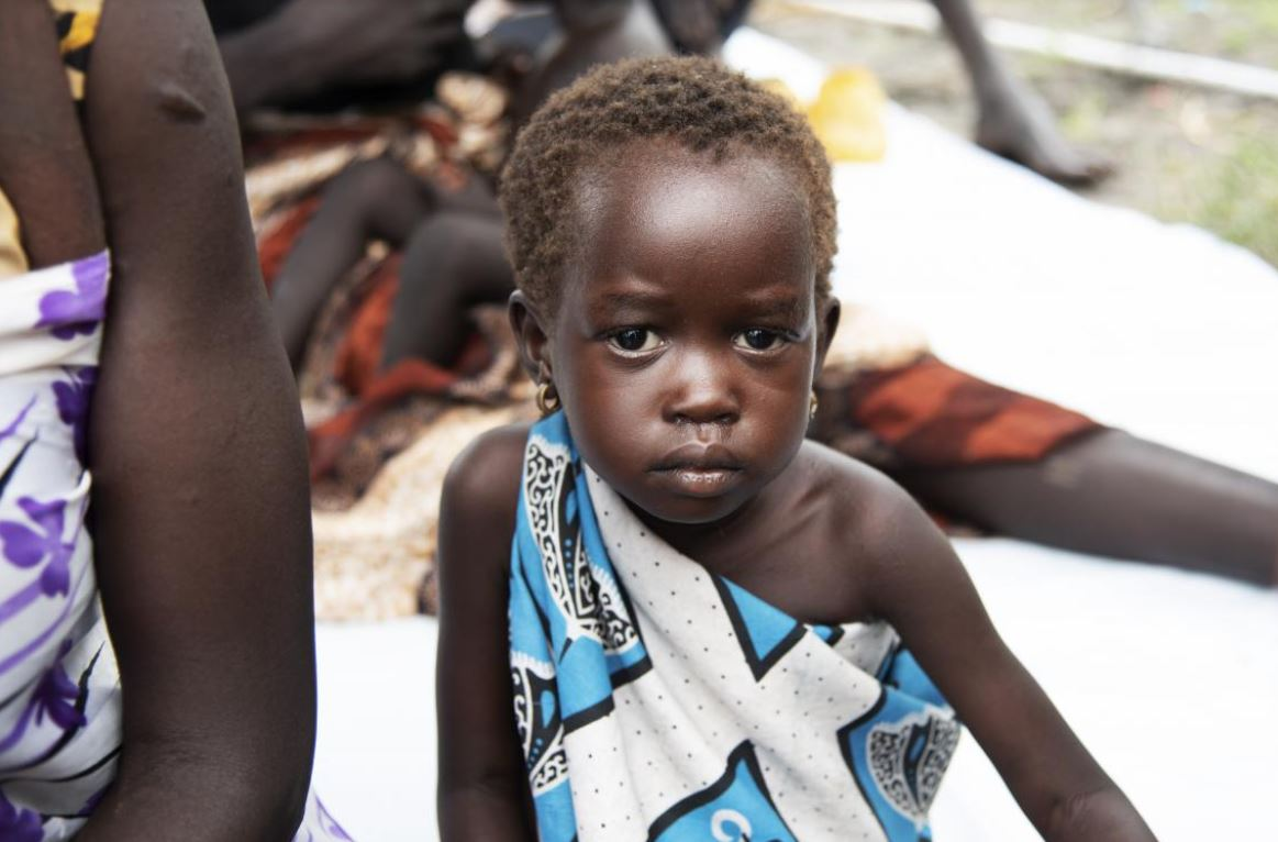 young girl suffering from malnutrition is fixing the camera