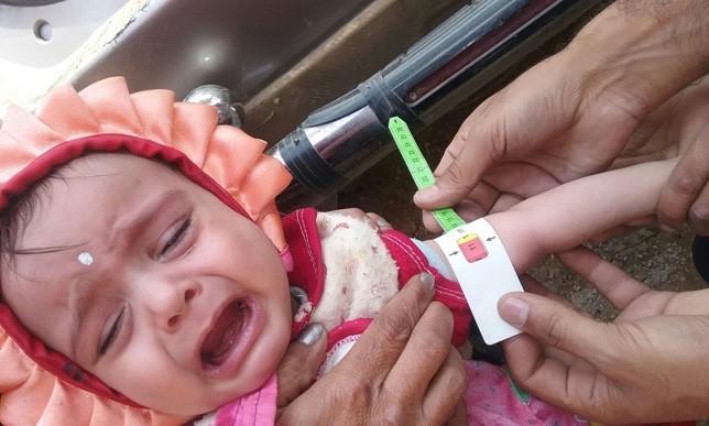 malnutrition yemen