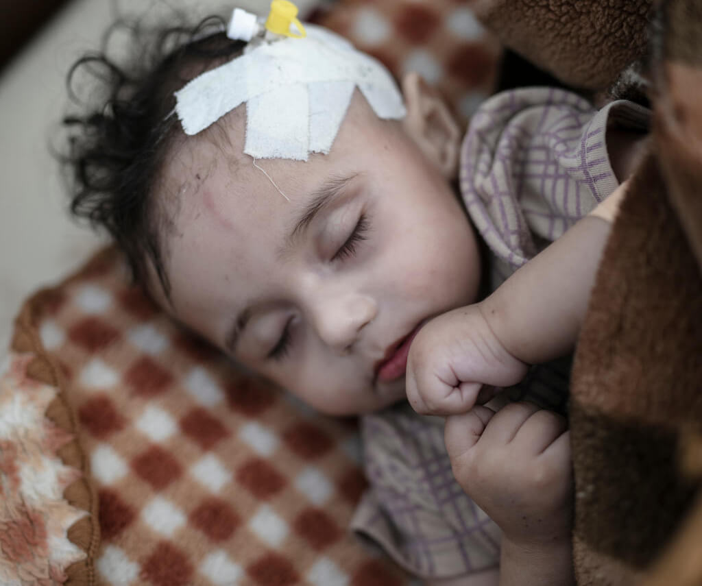 ill yemeni child asleep