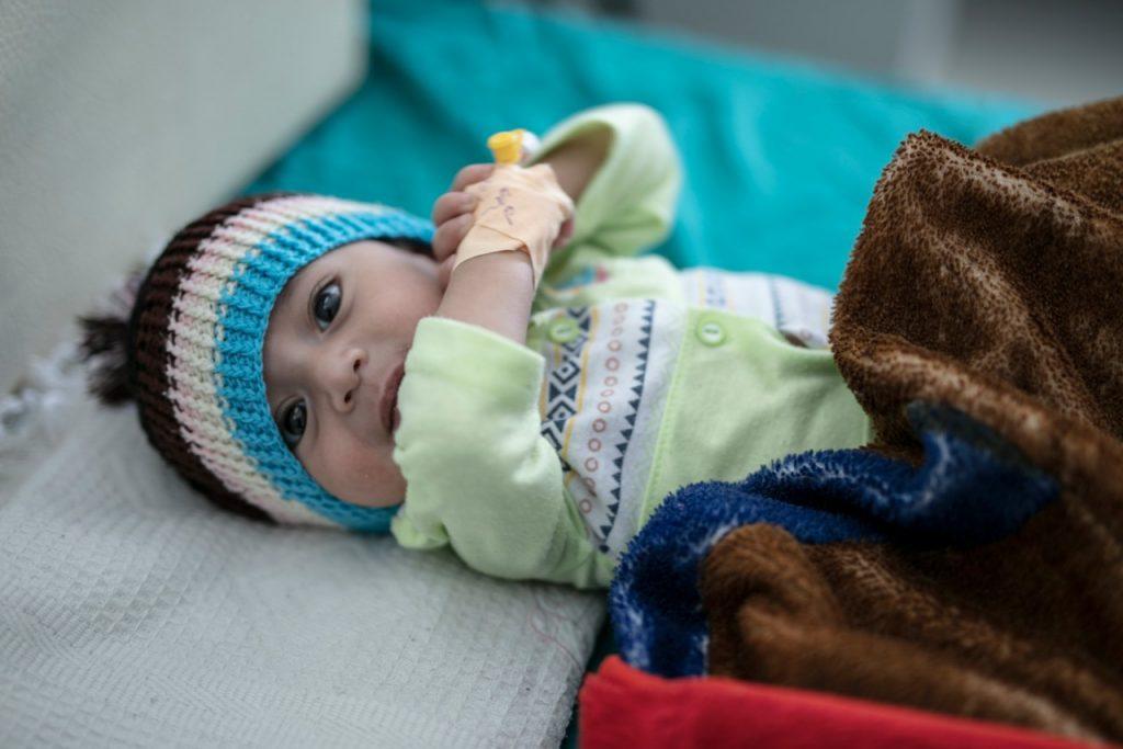 malnourished baby in Yemen hospital