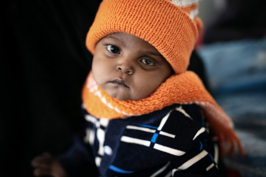 A baby in Yemen sufferes damage to eyesight from malnutrition