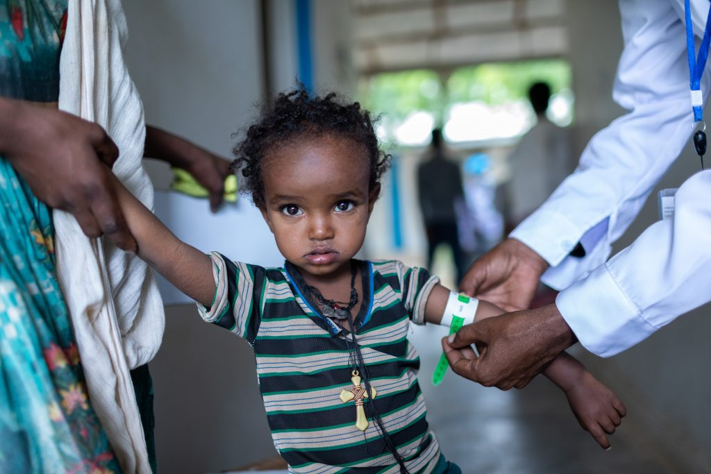 child being examined for malnutrition
