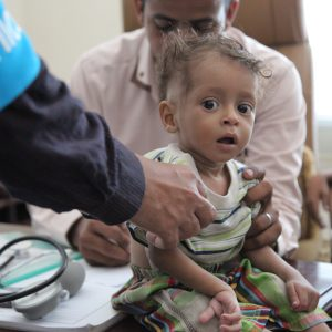 A boy is screened for malnutrition in Sa'ada, Yemen, Thursday 20 October 2016. Nearly 182,000 children in Yemen were treated for severe acute malnutrition as of October 2016.