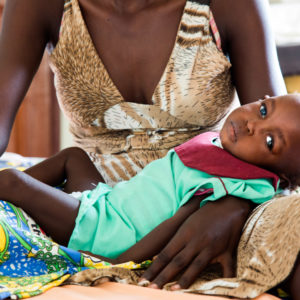 On 17 February 2017 in Juba,  Elizabeth Kegi, a 1.5-year-old child with severe malnutrition, rests on her mother's lap at the malnutrition ward in Juba, South Sudan. She is receiving treatment for malnutrition as a result of the food crisis.