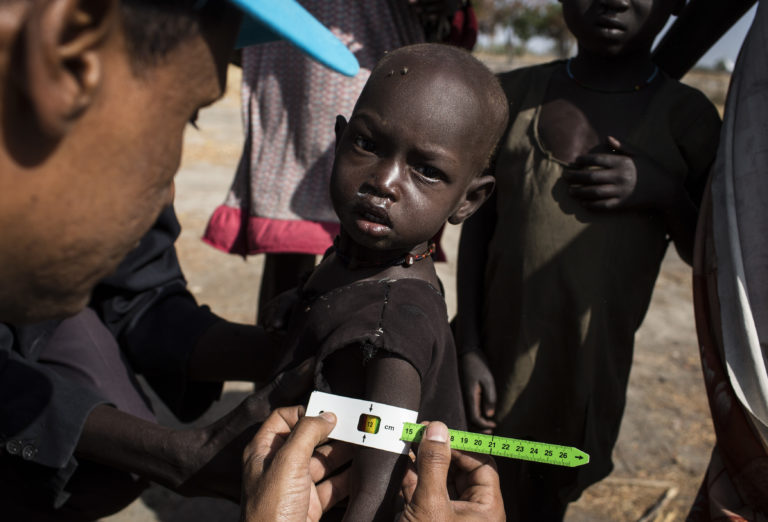"""UNICEF Nutrition Specialist, Kibrom Tesfaselassie checks a child for malnutrition during a Rapid Response Mechanism (RRM) mission in Thonyor, Leer county, South Sudan, February 25, 2017. """"The biggest challenge is the transportation of big amounts of humanitarian supplies to such remote areas of the country in order for UNICEF to serve big numbers of people. We don't always have such capacity. Children in these places have been deprived of basic services because of the situation in the country. My aim to reach and help all these children, boys and girls who are expecting our help"""", Kibrom explains. In areas affected by insecurity and cut off from humanitarian assistance, including Leer, Koch and Manyedit counties, UNICEF, in collaboration with World Food Programme and partners, are working to reach the most vulnerable children with acute malnutrition through Rapid Response Missions and to re-establish static services in areas with relative calm. Further missions are planned in the coming days and weeks to address the nutrition crisis. In March 2017, war and a collapsing economy have left some 100,000 people facing starvation in parts of South Sudan where famine was declared 20 February, three UN agencies warned. A further 1 million people are classified as being on the brink of famine. The Food and Agriculture Organization of the United Nations (FAO), the United Nations Children's Fund (UNICEF) and the World Food Programme (WFP) also warned that urgent action is needed to prevent more people from dying of hunger. If sustained and adequate assistance is delivered urgently, the hunger situation can be improved in the coming months and further suffering mitigated. The total number of food insecure people is expected to rise to 5.5 million at the height of the lean season in July if nothing is done to curb the severity and spread of the food crisis. According to the Integrated Food Security Phase Classification (IPC) update released 20 February by the government"""